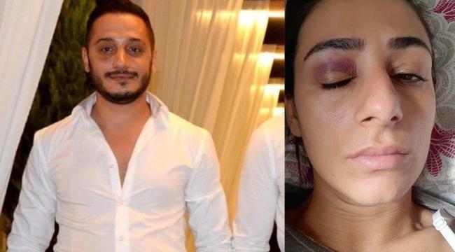 İzmir'de dehşet! Sokak ortasında taciz etti, tekme-tokat dövdü!